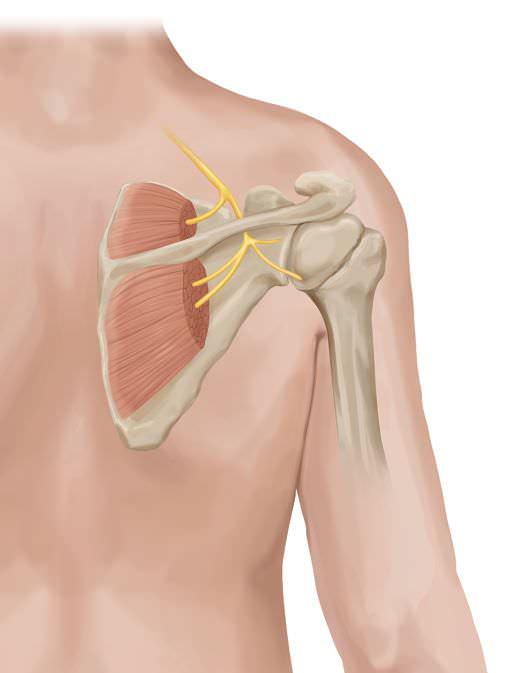 Chronic Shoulder Pain Treatment | Severe Shoulder Pain ...